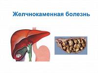 Отдается в дар Желчнокаменная болезнь: от С.П. Боткина к современности