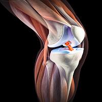 Отдается в дар Уникальный крем для лечения суставов